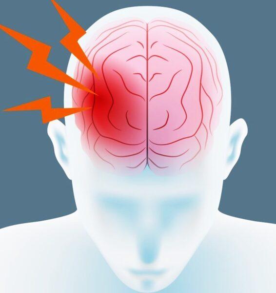 Нарушения мозгового кровообращения