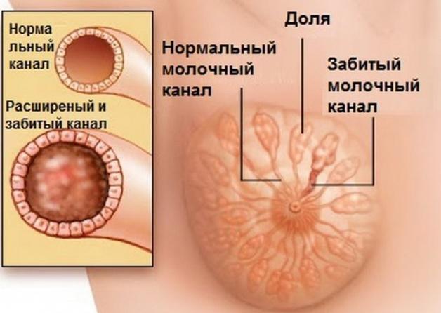 Нагрубание груди