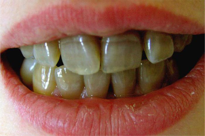 Чёрные зубы у детей