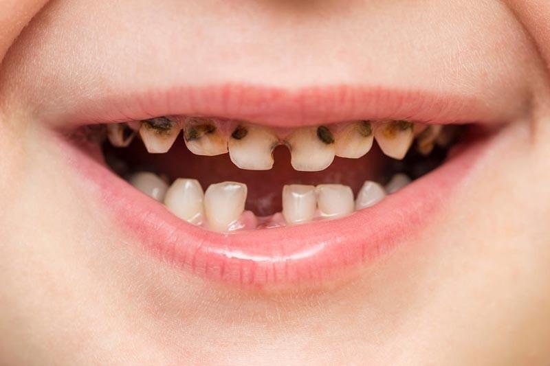 Чернеют зубы у ребёнка