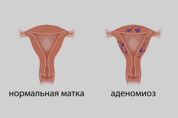 Аденомиоз матки что такое и как его лечить