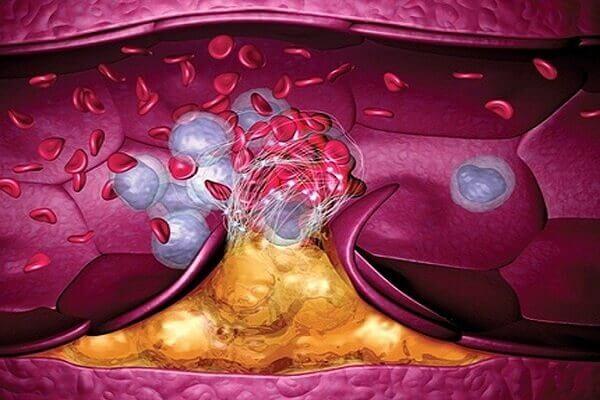 Почему появляется атеросклероз сосудов и тромбы