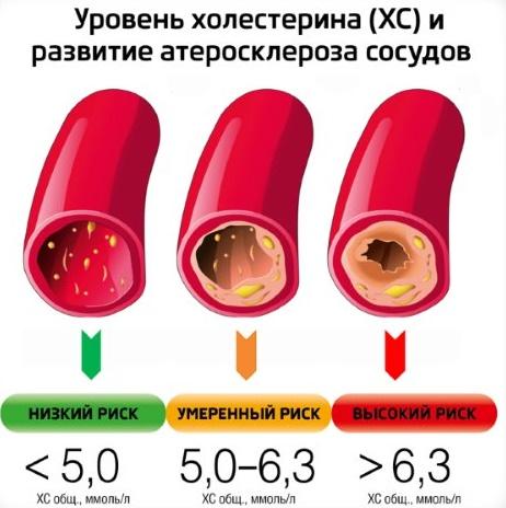 Холестерин ниже положенной нормы опасно ли это