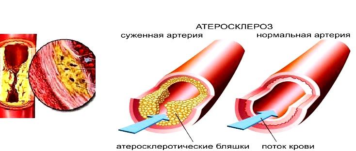 Факторы риска заболеваний связанных с атеросклерозом