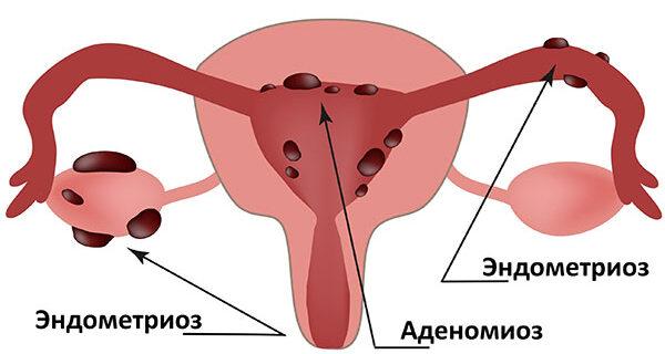 Эндометриоз никогда не излечить, можно только остановить рецидив