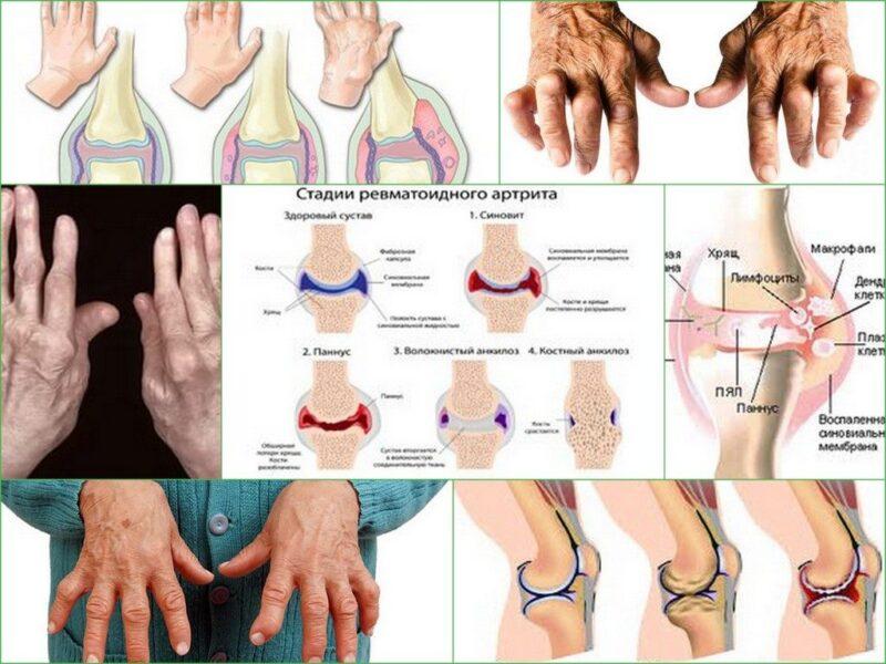 Диагностика и лечение артрита у взрослых и детей