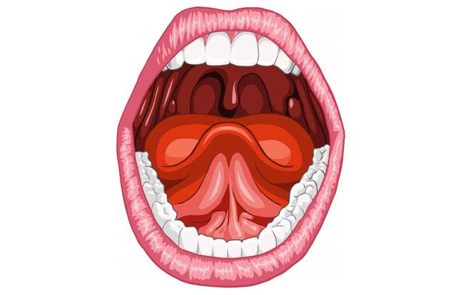 Что такое катаральная ангина: причины, симптомы, лечение