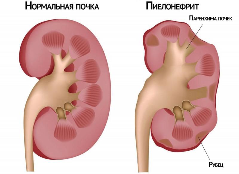 Симптомы и протекание хронического пиелонефрита