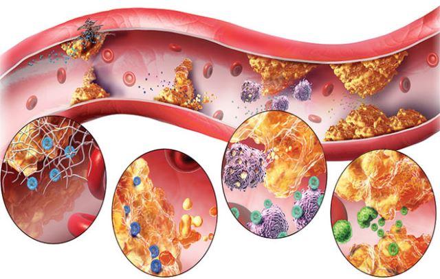 Эффективные методы лечения атеросклероза