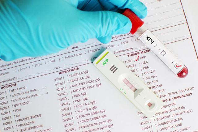 Когда можно делать тест на беременность уровень ХГЧ в моче и крови