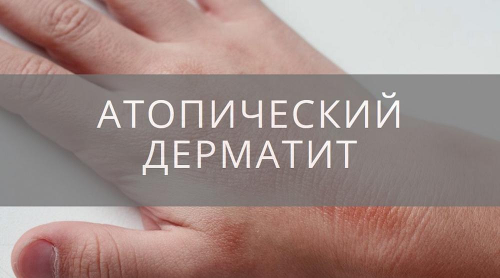 Как лечить атопический дерматит причины его развития