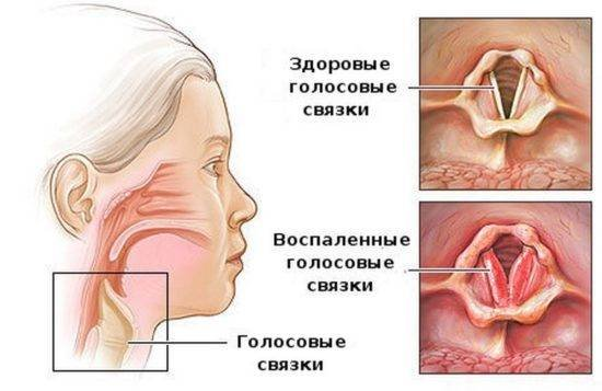 Как вылечить свой голос. Симптомы и лечение ларинготрахеита