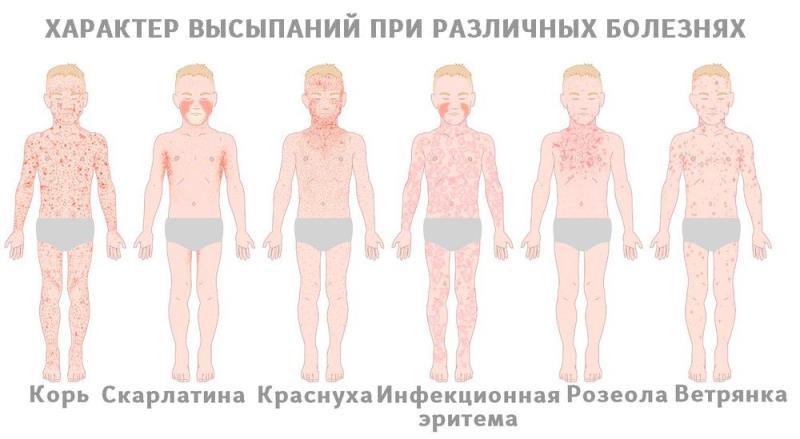 Какая сыпь бывает при инфекциях