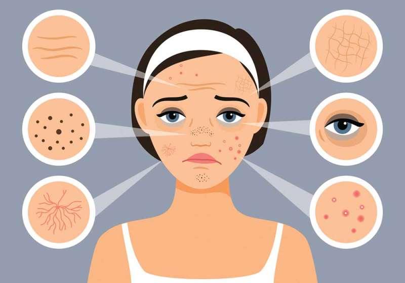 Как эмоции влияют на кожу. Зачем нужен дерматолог. Помогает ли дерматолог от прыщей. Профилактика появления прыщей