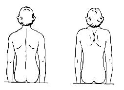Упражнение от боли в спине и пояснице. Упражнения при радикулите